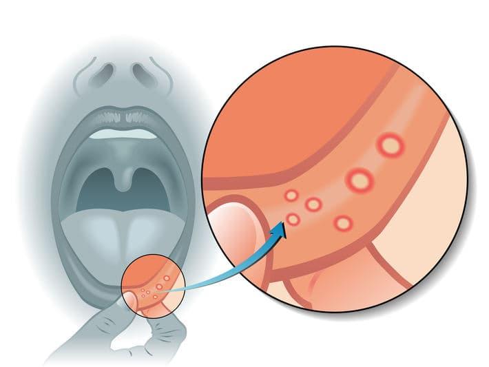 афтозный стоматит – фото