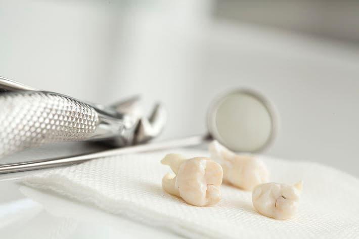 Сколько болит челюсть после удаления зуба
